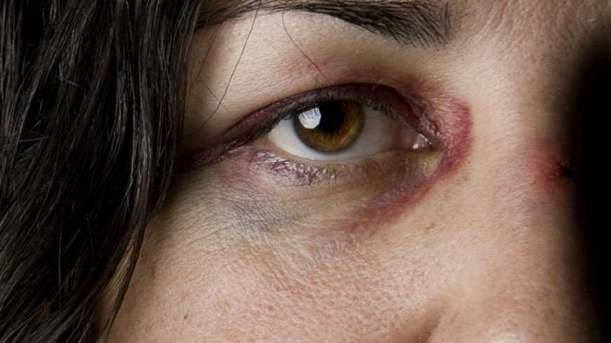 Violences conjugales : le Rhône compte le plus de décès